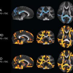 השוני בקשרים הנוירולוגים במוח של בעלי הפרעת בעיבוד – ויסות החושי